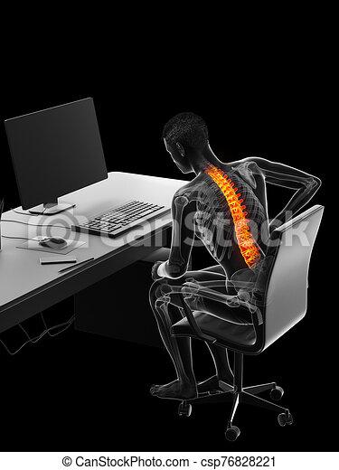 a man having a backache due to sitting - csp76828221