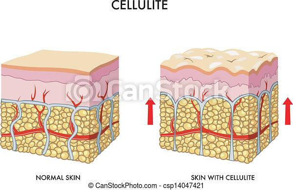 Cellulite - csp14047421