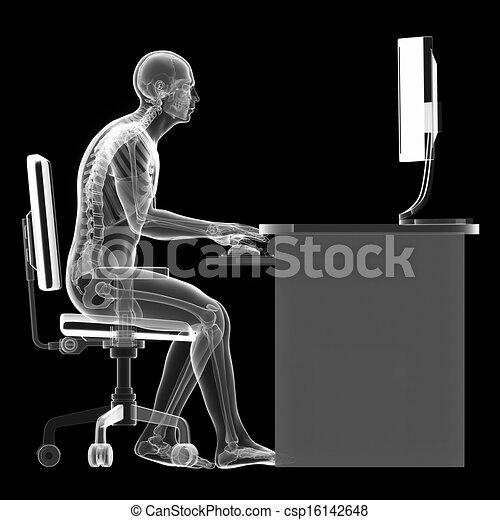 Wrong sitting posture - csp16142648