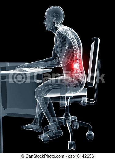 Wrong sitting posture - csp16142656